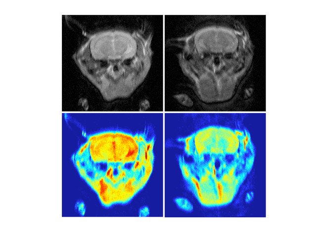 Magnetic resonance images (upper row) and the respective colour mapped images (bottom row) of Alzheimer's-affected mice before (left column) and after (right column) injection of the nanomaterial. The presence of senile plaques (bottom right corner) decreases the contrast.